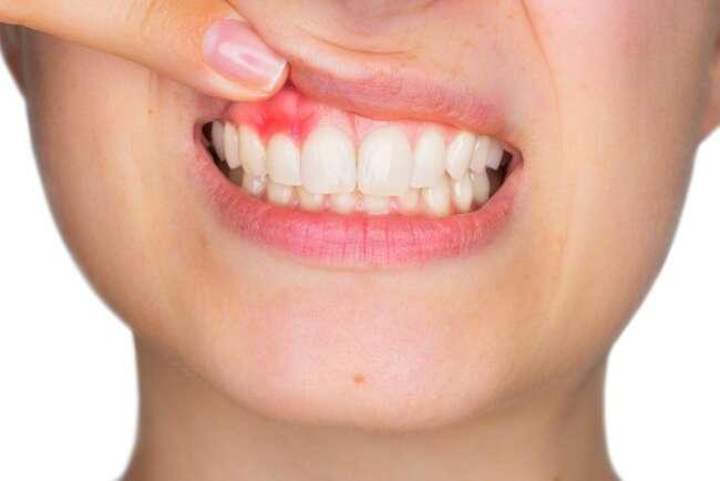 تومور حاملگی دندان