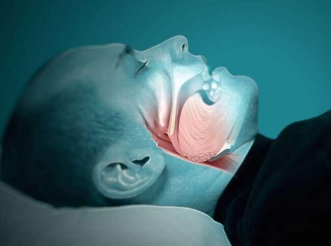 نفس کشیدن نامنظم و وقفه تنفسی هنگام خواب