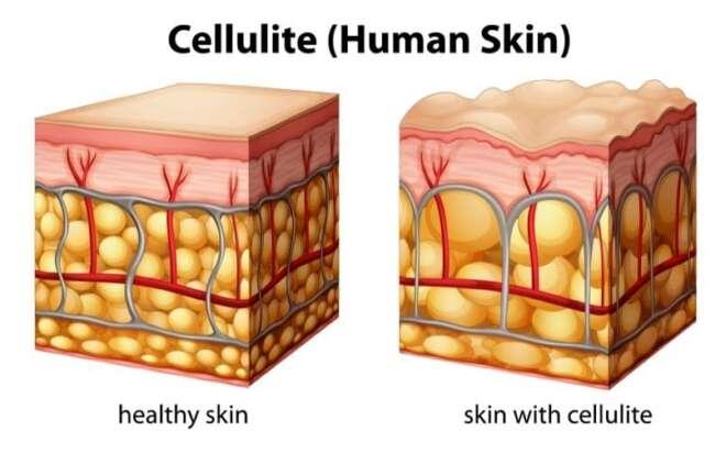 سلولیت