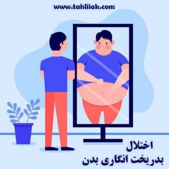 اختلال بدریخت انگاری بدن