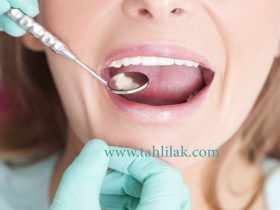 5295211 1280 514771081 patient visiting dentist 280x210 - بیماری عفونت لثه را جدی بگیرید.