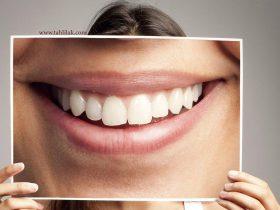 B9319089281Z.1 20151001184604 000 G10C3TT92 280x210 - چند بار در شبانه روز دندان هایمان را مسواک کنیم؟