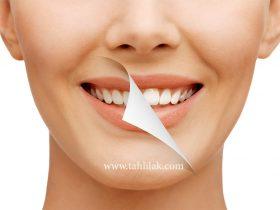 SMile SLider 280x210 - آیا جرم گیری دندان ها باعث لقی دندان می شود؟