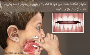 World Pediatric Dental Thumb Sucking 300x182 - ارتودنسی: رفتارهای اشتباه در کودکی