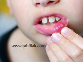 atypical CAPS mouth ulcer 280x210 - علت و علائم آفت دهان چیست؟