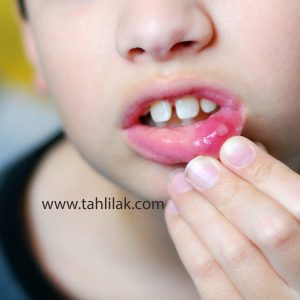 atypical CAPS mouth ulcer