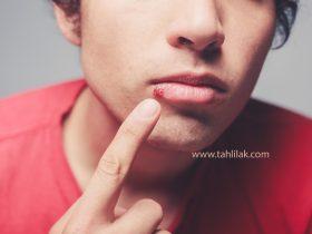 herpes 280x210 - تبخال و برفک، دو بیماری مخاط دهان